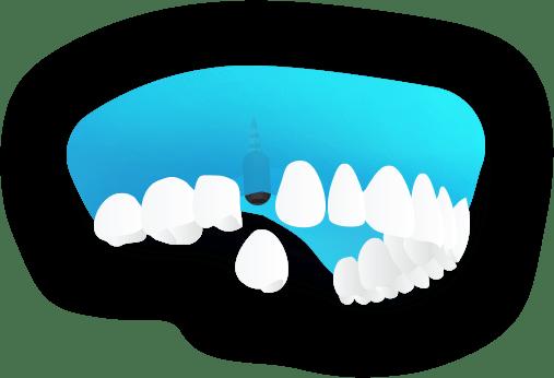 Implantologia - Sostituzione di un dente - Viadent, Fiume, Croazia