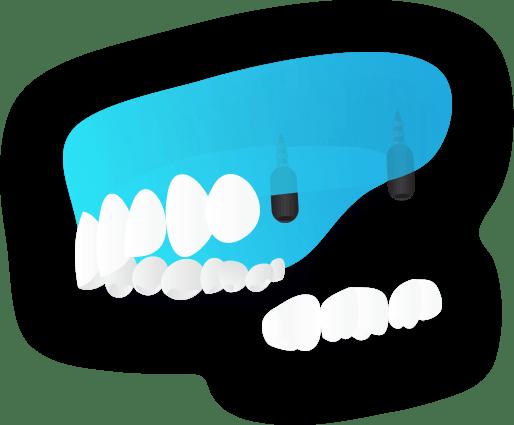 Implatologia - Sostituzione di due o più denti - Viadent, Fiume, Croazia