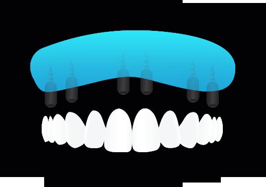 Imaplntologia - Sostituzione di tutti i denti nelle arcate edentule - Viadent, Fiume, Croazia