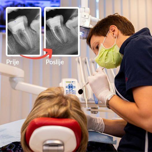 Trattamento endodontico - Viadent, Fiume, Croazia
